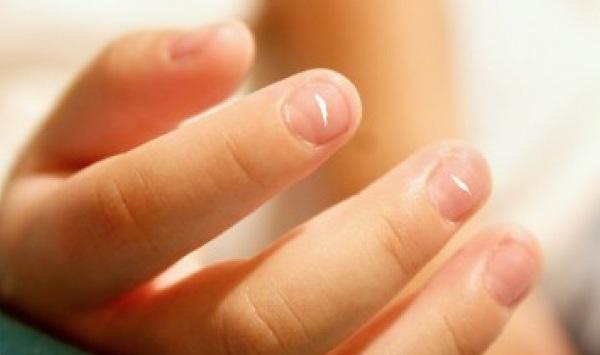 leuconiquia manchas uñas