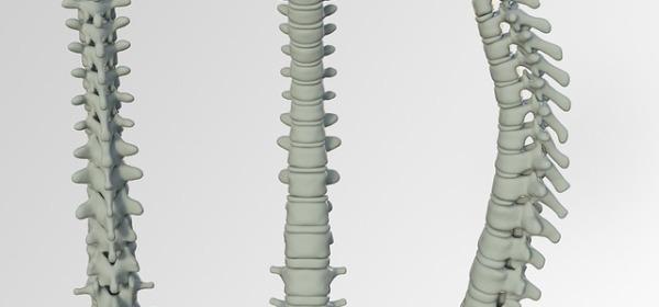 disco vertebral